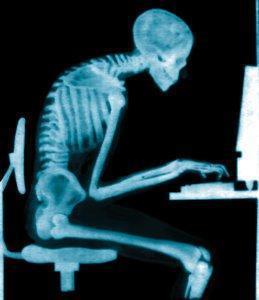x-ray posture